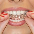 € 1.62 30% de réduction|Genkent 2 paires thermoformage garde bouche dentaire blanchiment des dents plateaux blanchiment des dents blanchiment des dents garde bouche soins hygiène buccale-in Blanchiment des dents from Beauté & Santé on Aliexpress.com | Alibaba Group