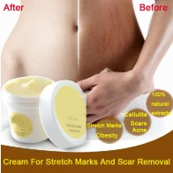 US $2.3 77% OFF|Thailand pasjel precious Skin Body Cream  stretch marks remover scar removal powerful postpartum obesity pregnancy cream-in Maternity from Beauty & Health on Aliexpress.com | Alibaba Group