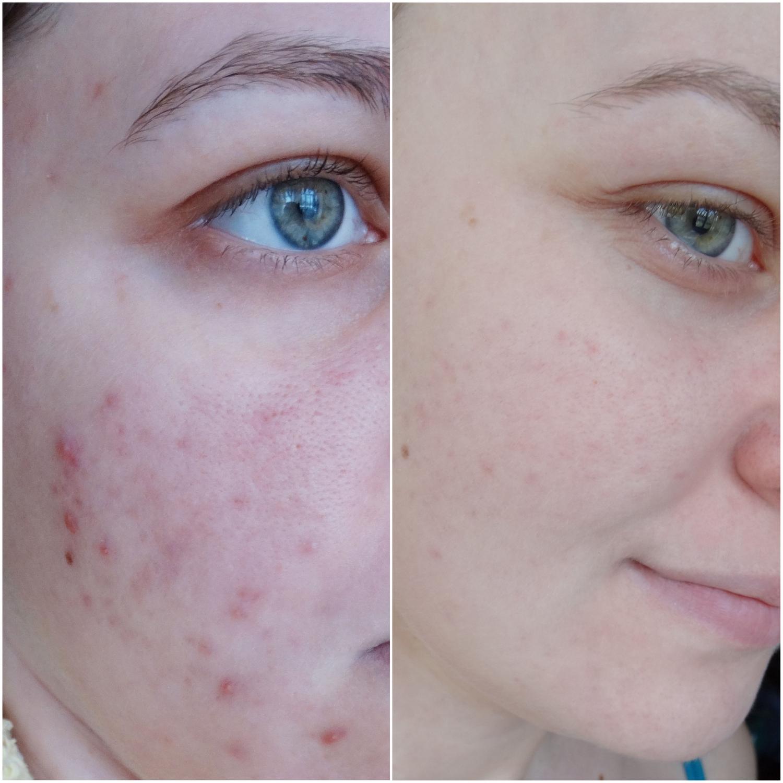 Польский гель для умывания для проблемной кожи. Поможет бороться с высыпаниями.