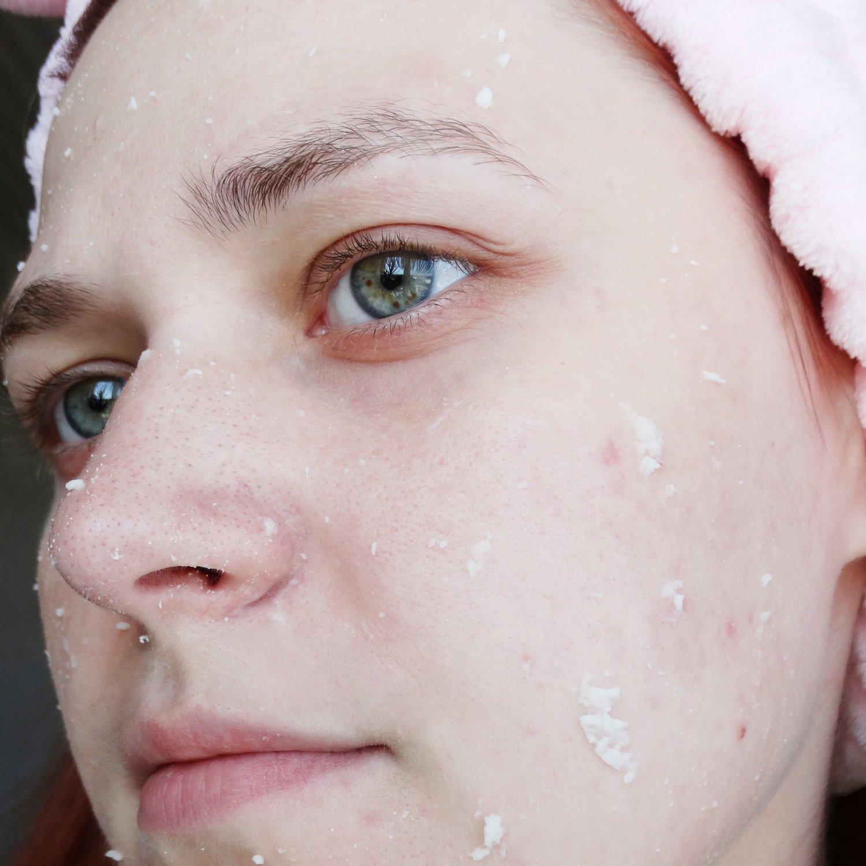 Щадящая альтернатива скрабам. Деликатное очищение проблемной кожи с воспалениями - skincare
