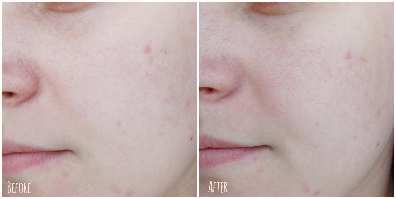 Щадящая альтернатива скрабам. Деликатное очищение проблемной кожи с воспалениями - люфа
