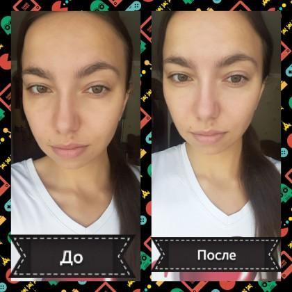 Обзор с фото до и после на патчи для глаз